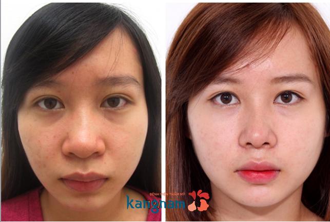 Phẫu thuật thu nhỏ đầu mũi có đau không? trước và sau khi thu nhỏ đầu mũi tại kangnam