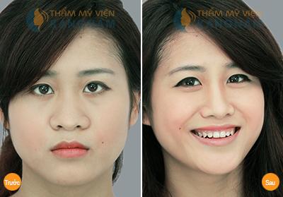 Kết quả hình ảnh cho site:nangmuidep.vn thu nhỏ đầu mũi