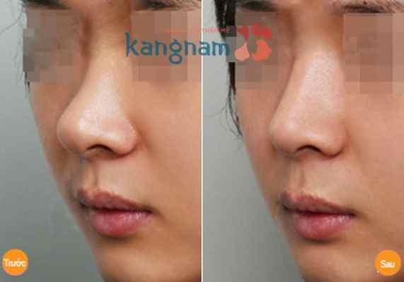 Kết quả sau nâng mũi bằng filler có ảnh hưởng gì không?