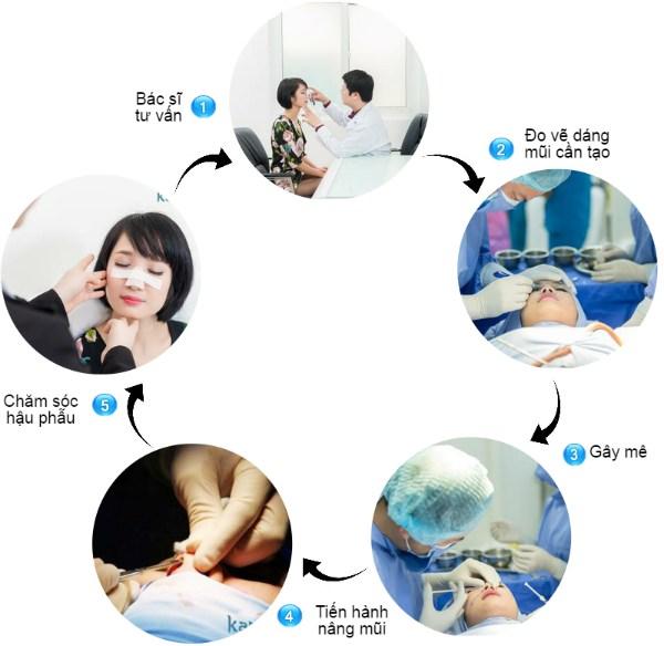 Quy trình nâng mũi S line 3 D tại Bệnh viện thẩm mỹ Kangnam