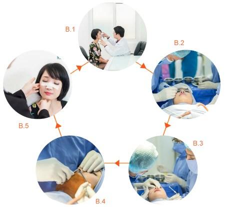 Quy trình sửa mũi gồ, mũi lệch tại Kangnam có đảm bảo không?